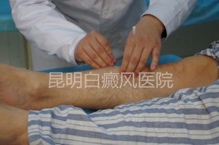 背部白癜风发病原因