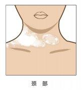 昆明白斑医院地址:颈部白癜风发展扩
